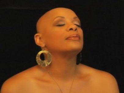 What Everybody Ought to Know About Alopecia   June's Journal image 6